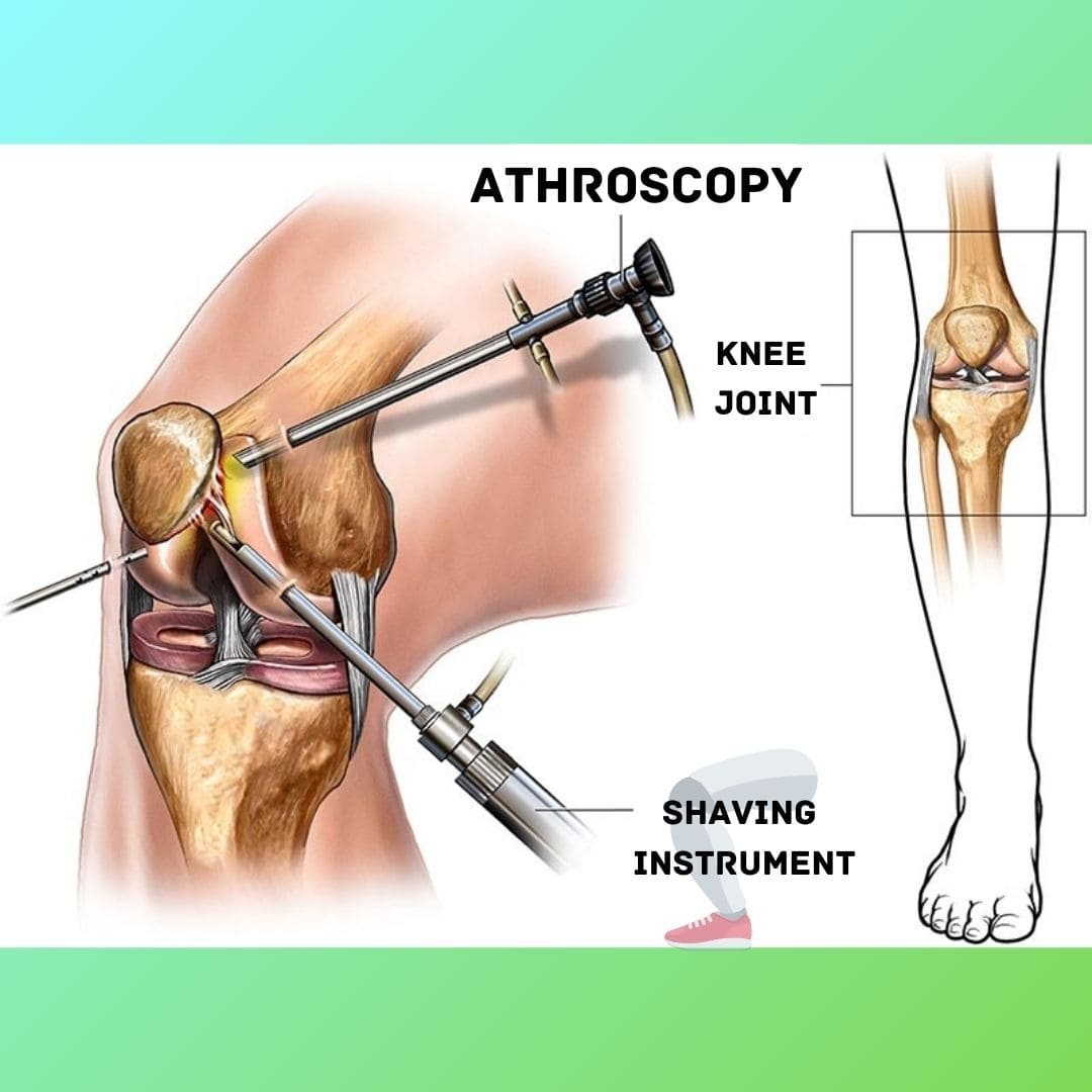 Arthroscopy Surgeon/Doctor in Ahmedabad, Gujarat, India, Knee Arthroscopic Surgery Cost in India