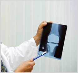 Total Knee Replacement Surgery In India, Total Knee Replacement In India, Tkr In India, Tkr In Rajasthan , Tkr In Ahmedabad, Total Knee Replacement Surgery In Rajasthan, Total Knee Replacement In Rajasthan, Tkr In In Rajasthan, Total Knee Replacement Surgery In Jaipur, Total Knee Replacement In In Jaipur, Tkr In In Jaipur